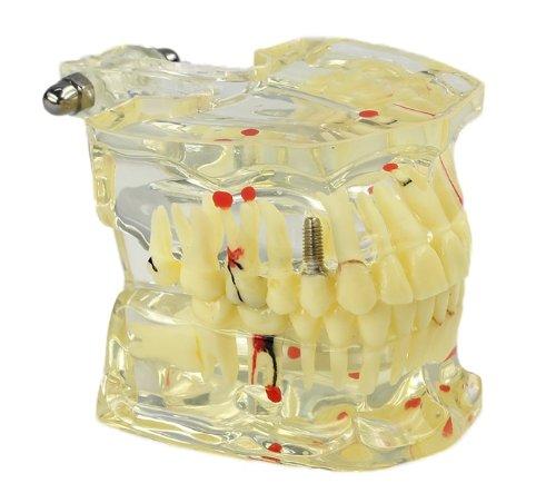 歯列模型 水平埋伏智歯 炎症 齲蝕 口腔病歯科模型 親不知 41