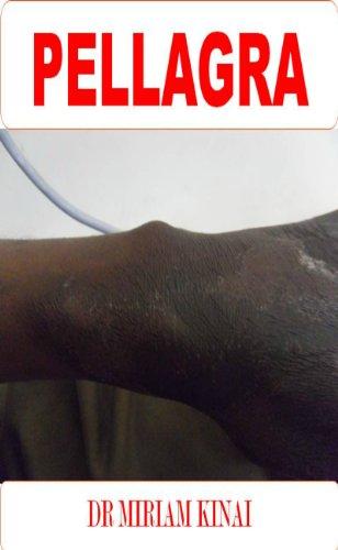 Dermatology: Pellagra (Skin Diseases Book 21)