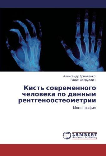 kist-sovremennogo-cheloveka-po-dannym-rentgenoosteometrii-monografiya-russian-edition