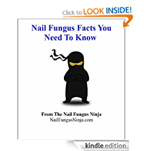 Nail Fungus Facts You Need To Know: William Allen: Amazon.com: Kindle ...