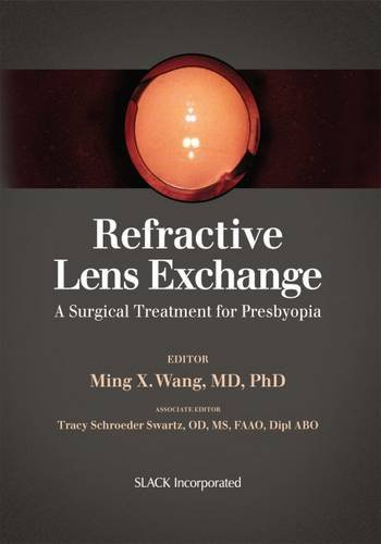 Refractive Lens Exchange: A Surgical Treatment for Presbyopia