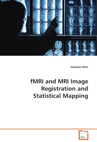 fmri-and-mri-image-registration-and-statistical-mapping