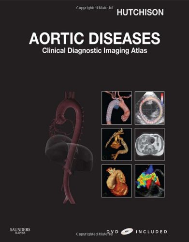 Aortic Diseases: Clinical Diagnostic Imaging Atlas with DVD (Cardiovascular Emergencies: Atlas and Multimedia)