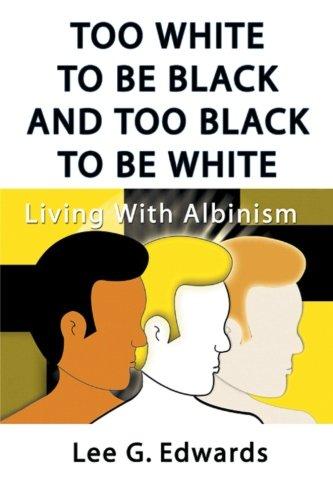 太白色到黑色,太黑了要白: 患白化病
