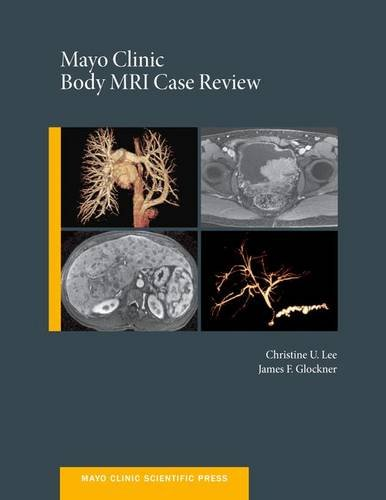 mayo-clinic-body-mri-case-review-mayo-clinic-scientific-press