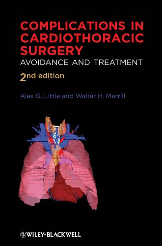 Complications in Cardiothoracic Surgery: Avoidance and Treatment PDF