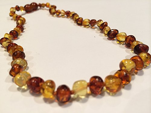 Maximum Effective Baltic Amber Teething Necklace Lemon Cognac Honey for Infant Baby Babies Toddler Bub Fever Drooling Inflamation Colic Reflux Eczema Aches and Pains Diaper Rash Growing Pains Cold Symptoms Round Oval Design Therapeutic Holistic Natural Organic GERD Reflux Colic fever Brown Yellow
