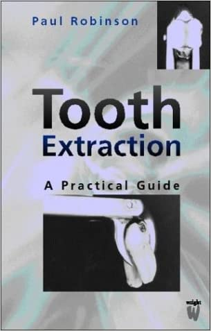 Tooth Extraction: A Practical Guide, 1e