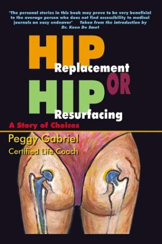 Resurfacing Hip Arthroplasty. Get Hip Replacement or Hip
