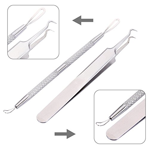 adecco-llc-professional-blackhead-splinter-remover-tools-easily-cure-pimples-whiteheads-comedones-ac