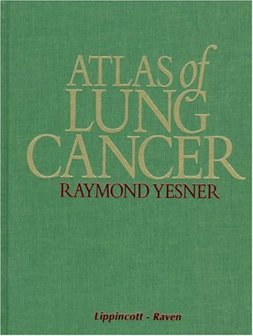 Atlas of Lung Cancer