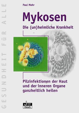 Mykosen-die (un)heimliche Krankheit: Pilzinfektionen der Haut und der inneren Organe ganzheitlich heilen