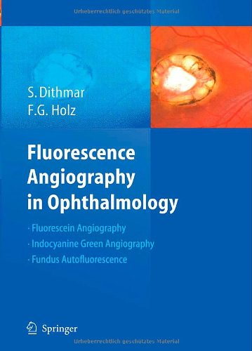 Fluorescence Angiography In Ophthalmology
