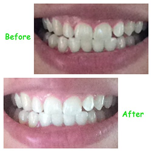 Dentist Teeth Whitening Strips - 28 Latest Premium Whitener Strips (14 days) Works In Under 50 minutes - Advanced Professional Gel - Zero Peroxide *FREE* Weight Loss Tips *FREE* Hollywood Dentist Tips