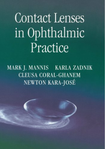 Contact Lenses in Ophthalmic Practice