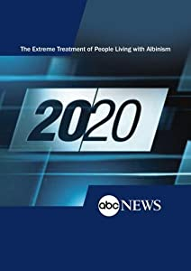 20/20: The Extreme Treatment of People Living with Albinism: 10/2/09