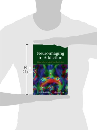 Neuroimaging in Addiction