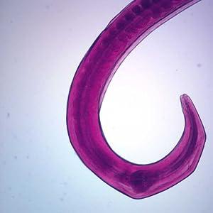 Amazon.com: Enterobius vermicularis, w.m. Microscope Slide ...