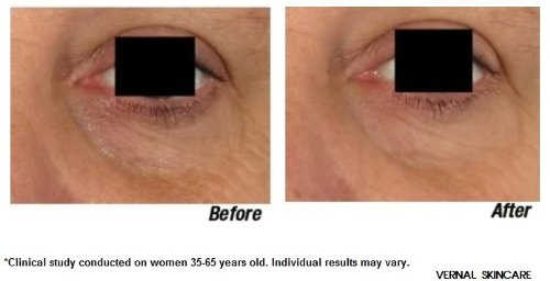anti aging eye treatment