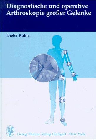 Diagnostische und operative Arthroskopie großer Gelenke