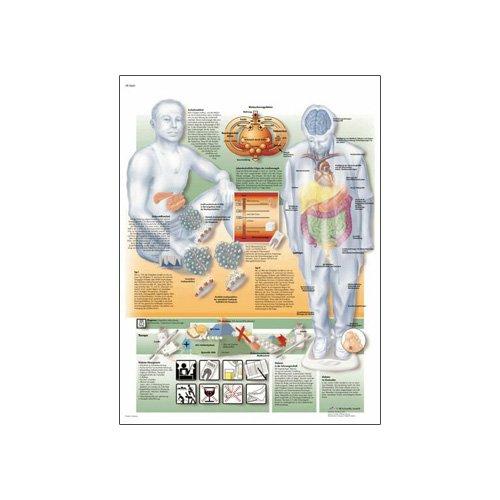 3B Scientific Glossy Paper Diabetes Mellitus Anatomical Chart - 1