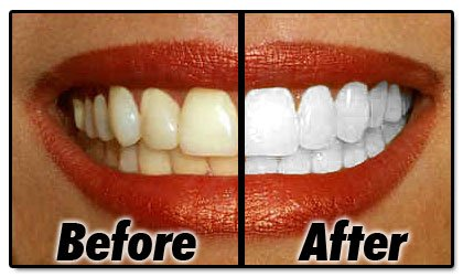 TEETH WHITENING PRODUCTS - Safe for your teeth