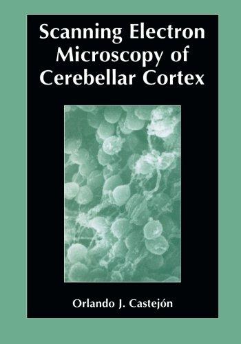Scanning Electron Microscopy Of Cerebellar Cortex