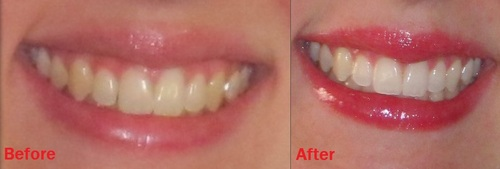 отбеливание зубов крест 3д вайт