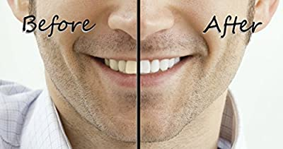 Teeth Whitening Gel with Tray - Instantly Whiter Brighter Teeth - Best Whitener Available - Makes Every Tooth as White as Possible