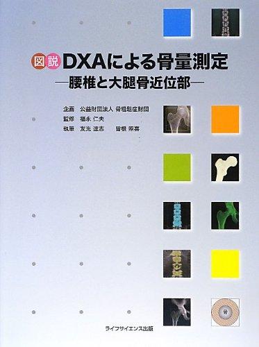 図説DXAによる骨量測定