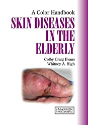Skin Diseases in the Elderly (Colour Handbook)