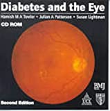 img - for Diabetes and the Eye, CD-ROM book / textbook / text book