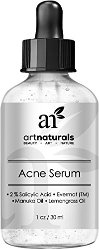 art-naturals-anti-acne-serum-treatment-1-oz-dermatologist-tested-product-made-with-organic-ingredien