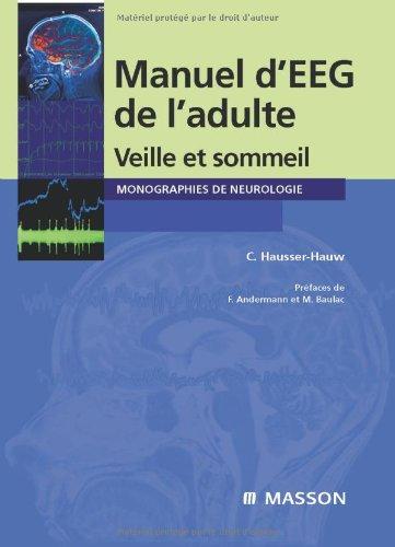Manuel d'électroencéphalogramme de l'adulte (French Edition)