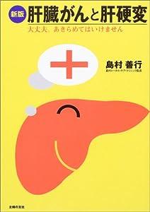 肝臓がんと肝硬変―大丈夫。あきらめてはいけません