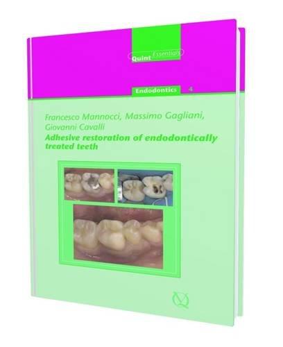 adhesive-restoration-of-endodontically-treated-teeth-quintessentials-of-dental-practice