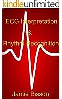 ECG Interpretation & Rhythm Recognition (English Edition)