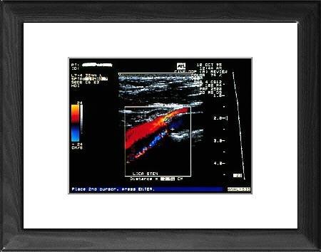 Kunstdruck Von Kunst Doppler Ultraschall-scan Mit Halsschlagader ...