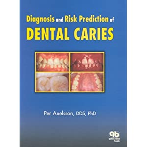 Amazon.com: Diagnosis and Risk Prediction of Dental Caries, Volume ...