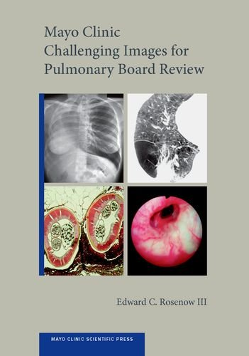 mayo-clinic-challenging-images-for-pulmonary-board-review-mayo-clinic-scientific-press