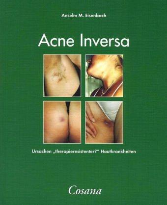 akne-inversa-ursachen-therapieresistenter-hautkrankheiten