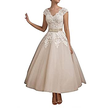 FNKS Women's 1950s Vintage Tea Length Wedding Dresses Lace Prom Dress