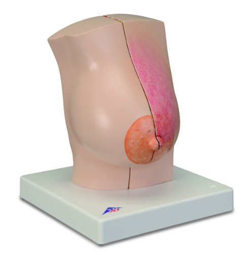 3B Scientific Model of Female Breasts, Two Halves