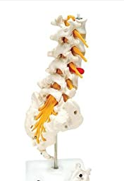 Anatomical Innovations 975 Lumbar Spinal Column Model with Dorso-Lateral Prolapsed Intervertebral Disc
