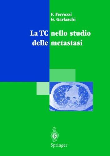 La TC nello studio delle metastasi (Italian Edition)