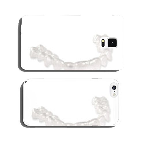 invisalign-zahnspange-aus-kunststoff-cell-phone-cover-case-iphone6
