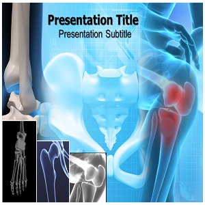 Bone Cancer Powerpoint Templates - Bone Cancer (PPT) Powerpoint Presentation On Templates