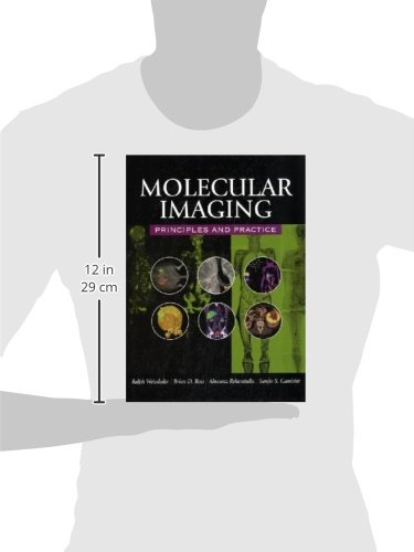 Molecular Imaging: Principles and Practice