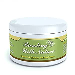 Eczema, Psoriasis & Dermatitis Cream Treatment - Baby to Adult Skin & Scalp - 8oz 100% Natural - Itch Relief - By Bursting With Nature