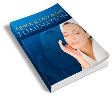 Acne Prevention Guide - Guide To Quick And Easy Acne Elimination, WITH BONUS ARTICLES.